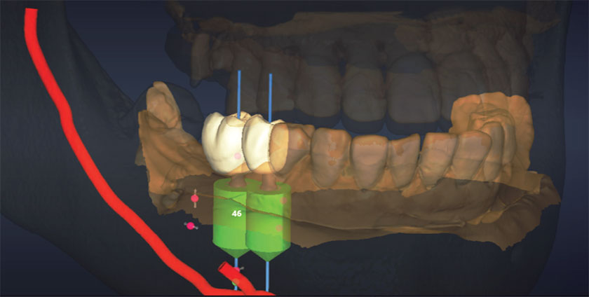 Introduction to Guided Implant Surgery