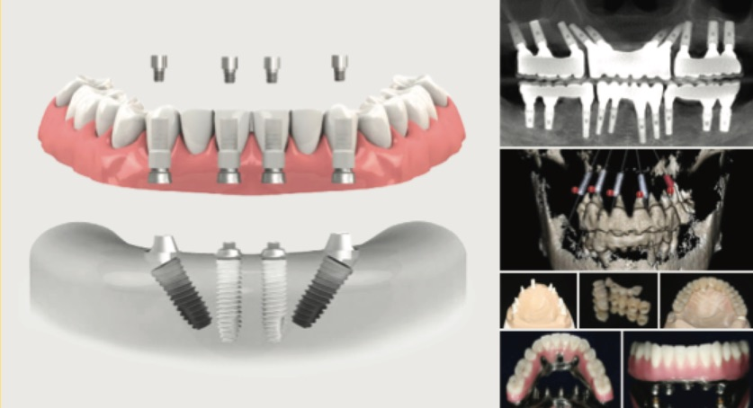 Implant Therapy in the Complex or Full-Arch: Gaining Confidence Beyond the 3-Unit Bridge