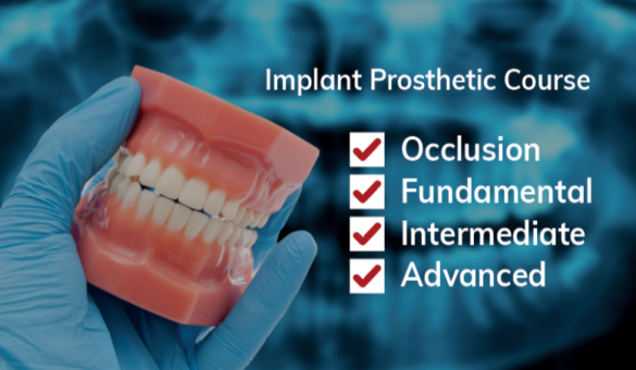 Implant_Prosthetic_Course