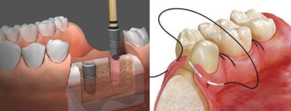 Get into Surgical Dentistry Now!
