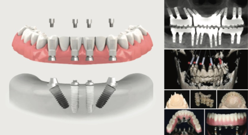 Implant Therapy in the Complex or Full-Arch: Gaining Confidence Beyond the 3-Unit Bridge (Southern California Location)