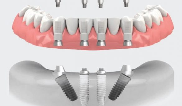 Implant_Therapy_in_the_Complex_th
