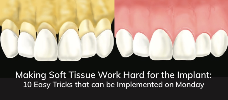 Making Soft Tissue Work Hard for the Implant