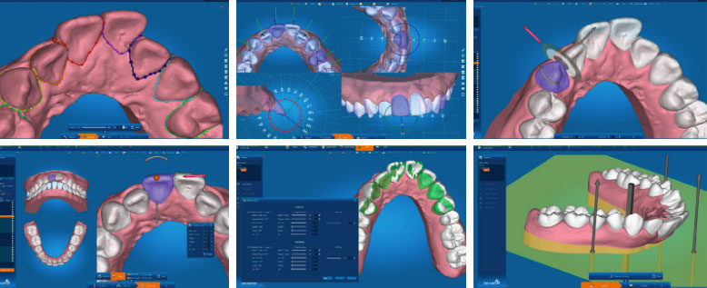 How to Treatment Plan Express Ortho Cases, 3D Print, and Make Cost-Effective In-Office Aligners with DICAON-4D