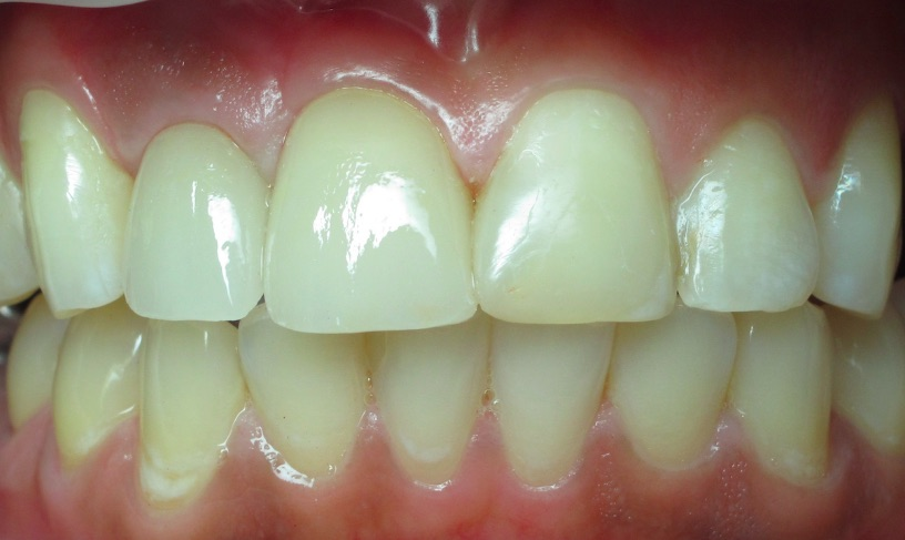 Everything You Wanted to Know About Anterior Esthetic Implant Cases