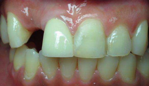 Anterior Esthetic Implant Cases_th